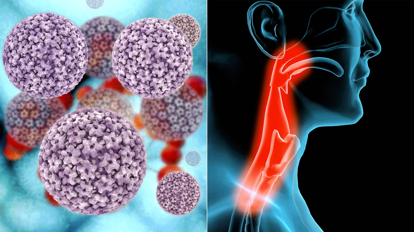 hpv and throat cancer