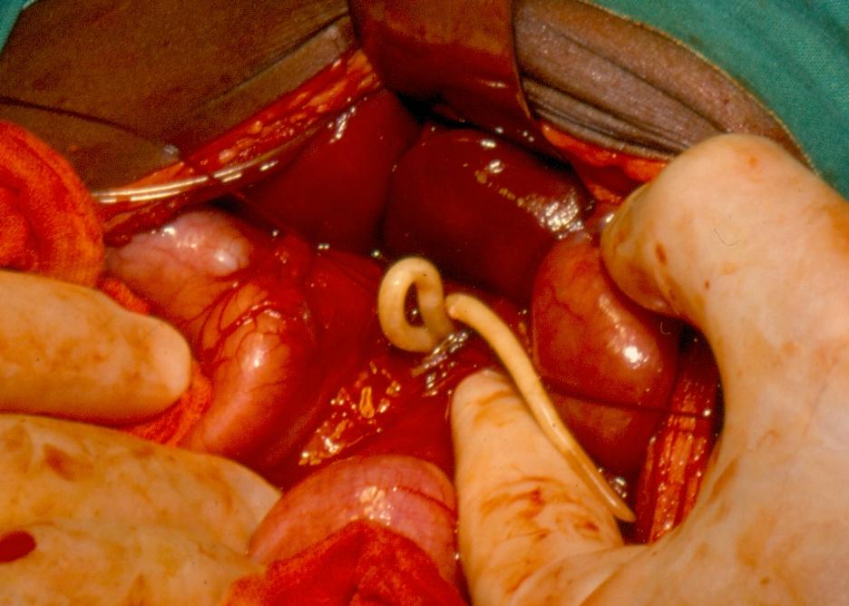 hpv e o cancer do colo de utero