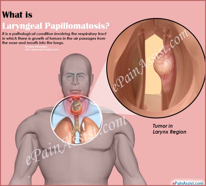 define respiratory papillomatosis