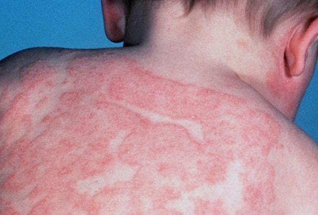 dermatite atopica immagini