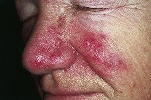Dermatita de contact: Cauze - Simptome - Tratament