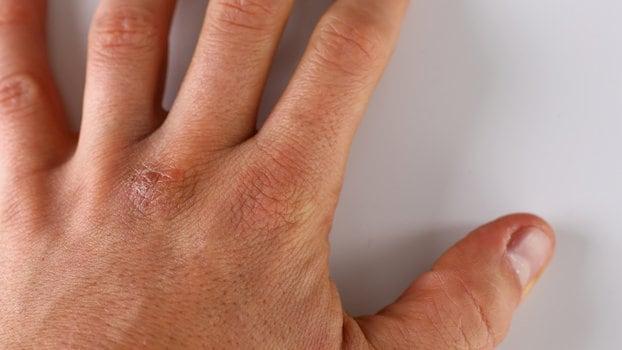 Iritaţia organelor genitale: cauze, simptome şi tratament