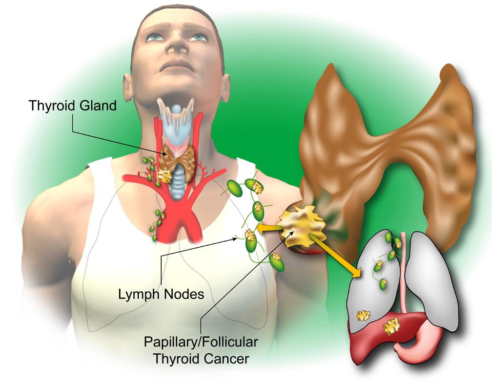 cancer colon liver metastases treatment