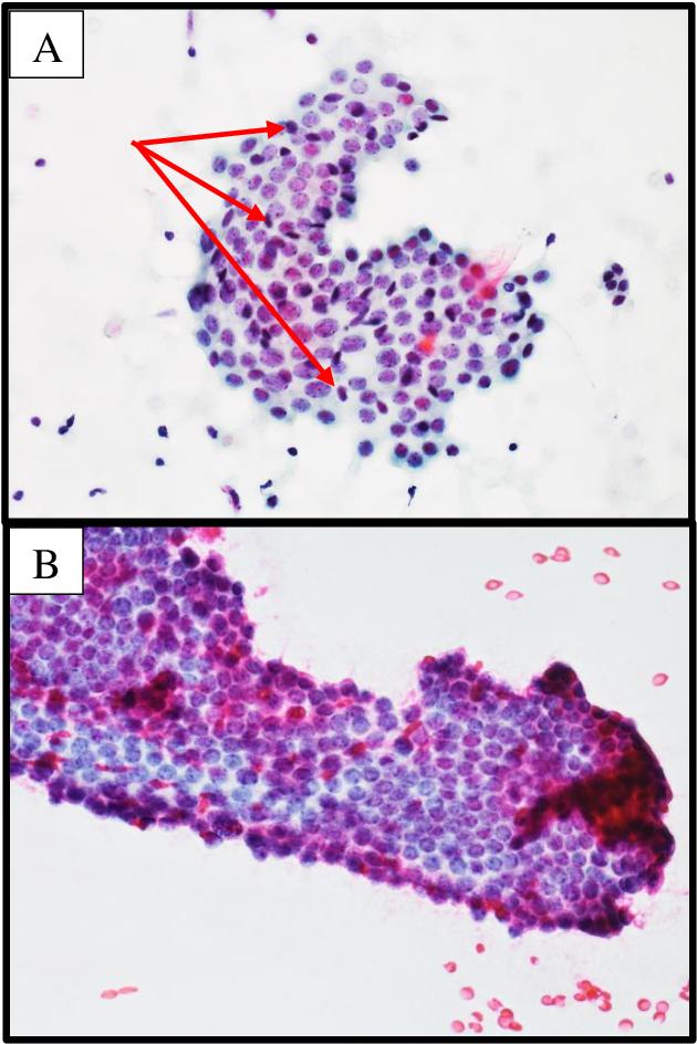 duct papilloma cytology come curare il papilloma virus uomo