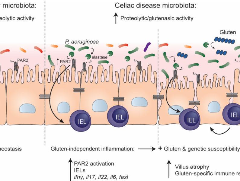 dysbiosis a risk factor for celiac disease