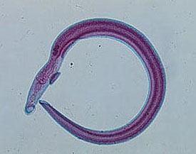 schistosomiasis haematobium