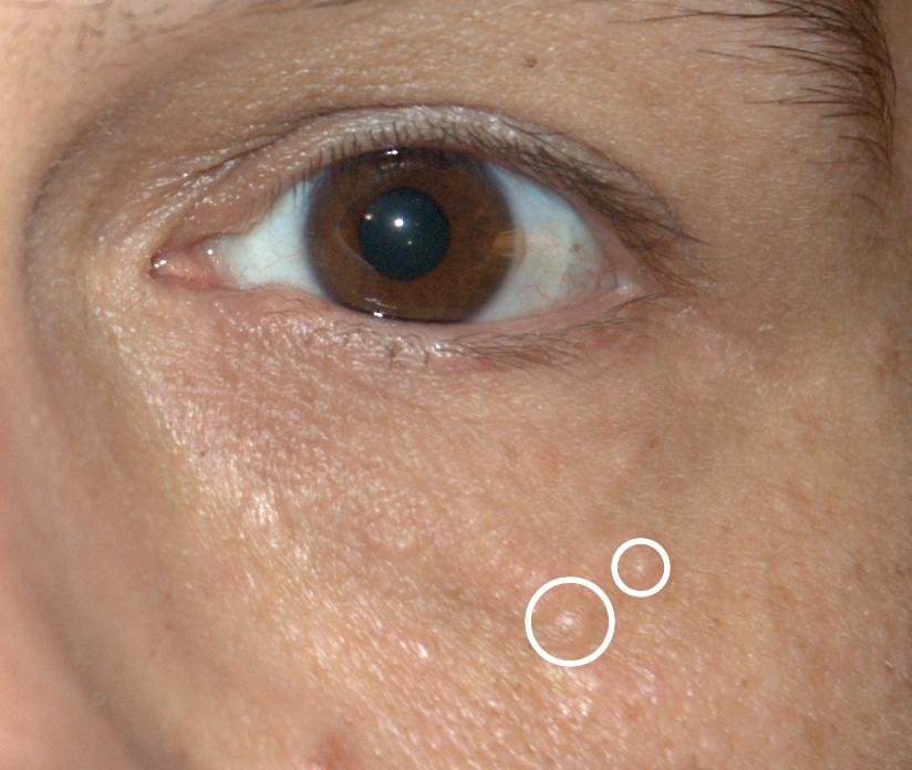 human papillomavirus infection or herpes antihelmintic cu spectru larg