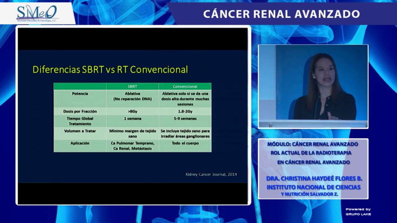cancer renal avanzado