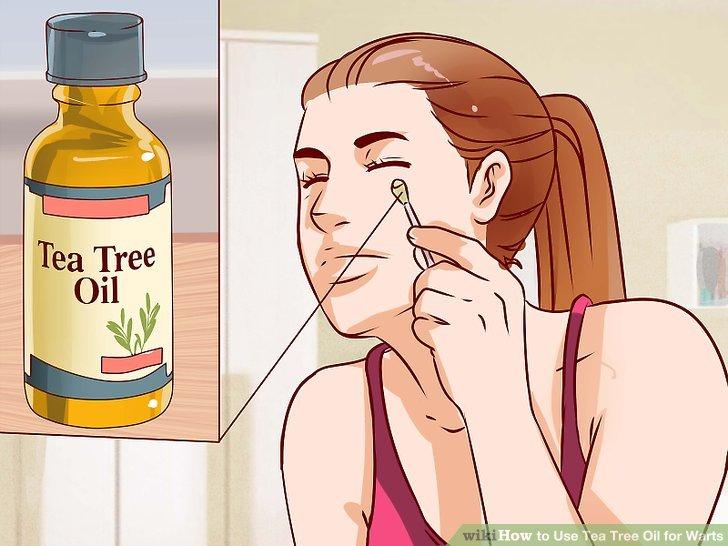 papillomavirus tea tree oil prise de sang papillomavirus