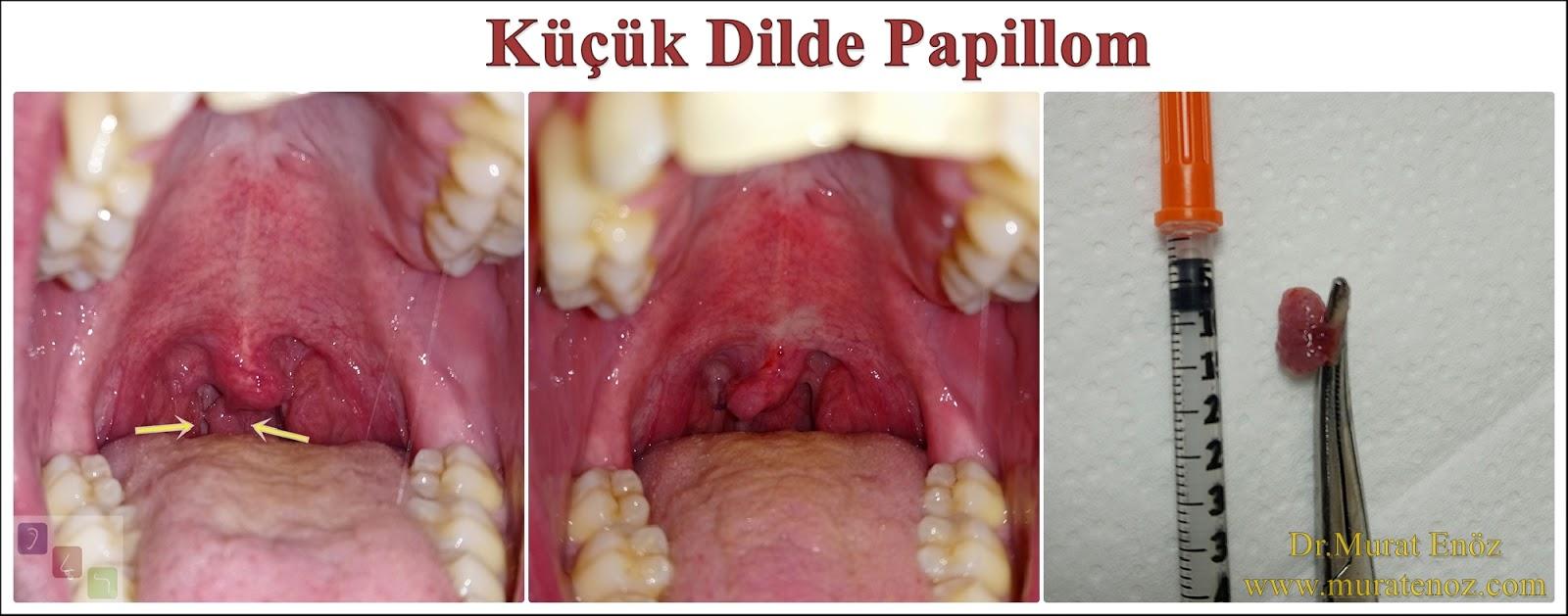 hpv papilloma uvula