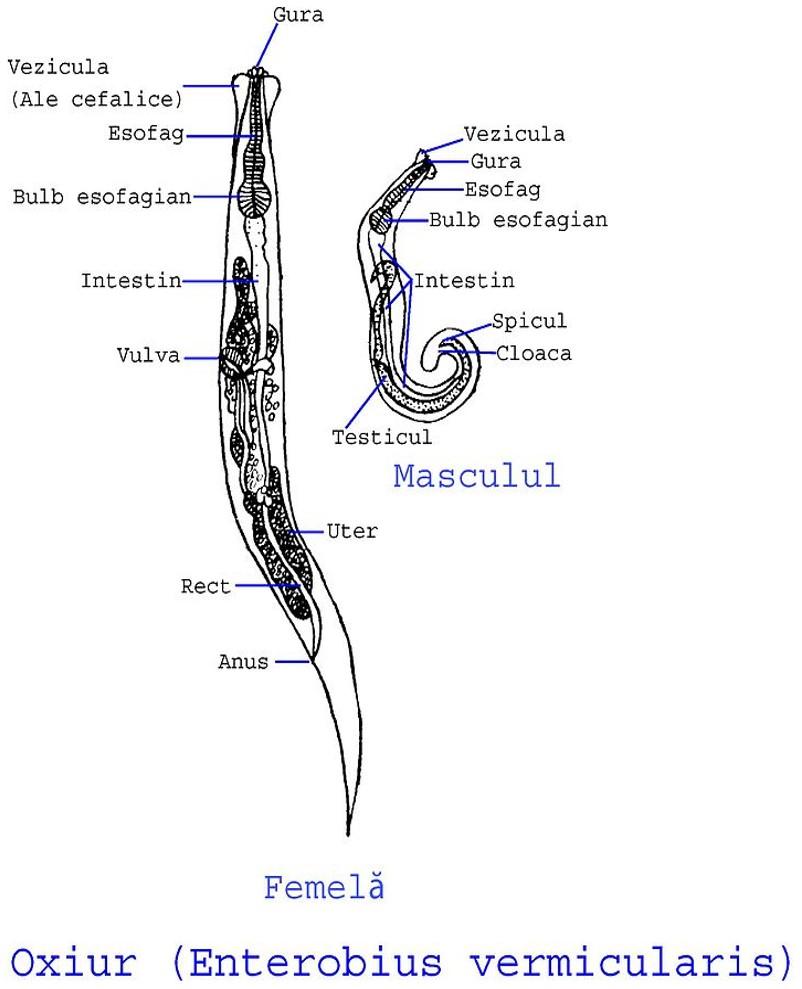 enterobius vermicularis que enfermedad produce