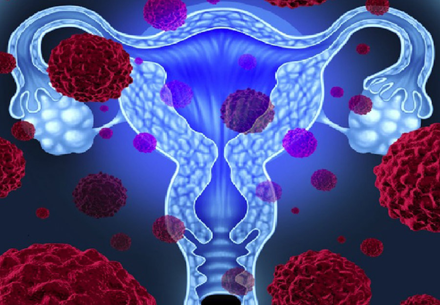 hpv virus and bowel cancer anemie hipercroma