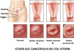 Cancerul endometrial - simptome, factori de risc, diagnostic si tratament