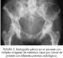 Prostate cancer metastasis: Where does prostate cancer spread? - Prostaffect сumpără
