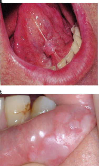 hpv mouth infection