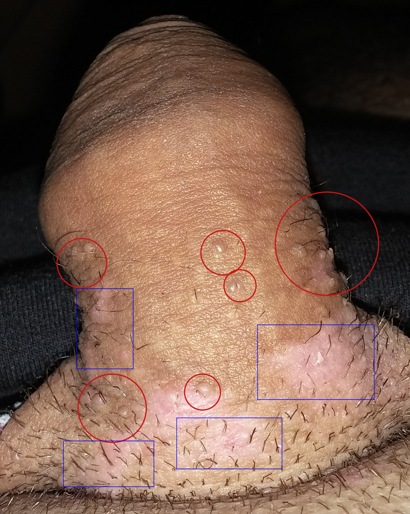 papilloma duttale maligno hpv warts hydrogen peroxide