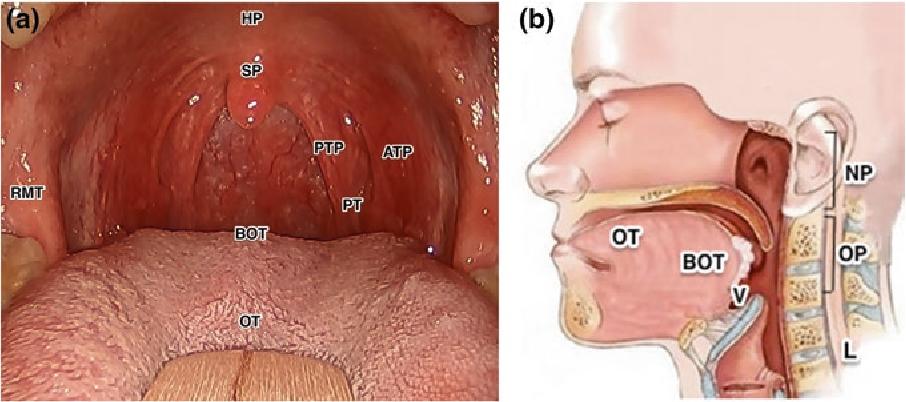 human papillomavirus and oropharyngeal cancer papilloma virus al naso