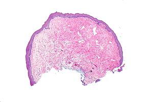 papiloma fibroepitelial histologia