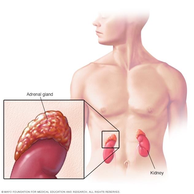 cancer renal infantil