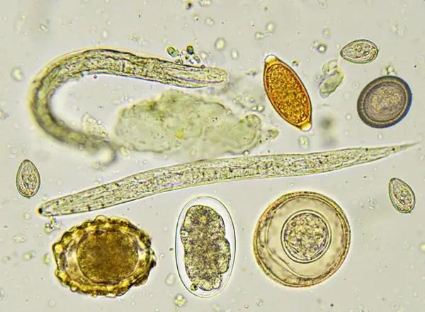 Paraziti helminth lamblia