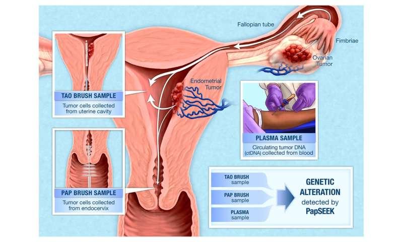 cervical cancer and endometriosis