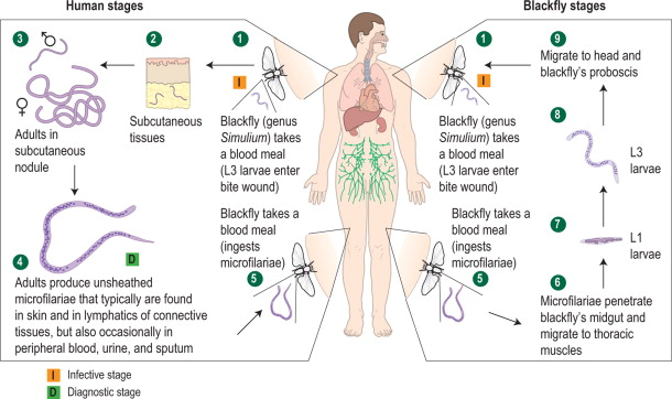 helminth infections onchocerciasis