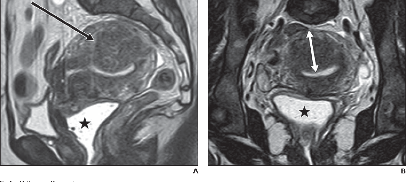 the papillary urothelial carcinoma helminth definition in medical