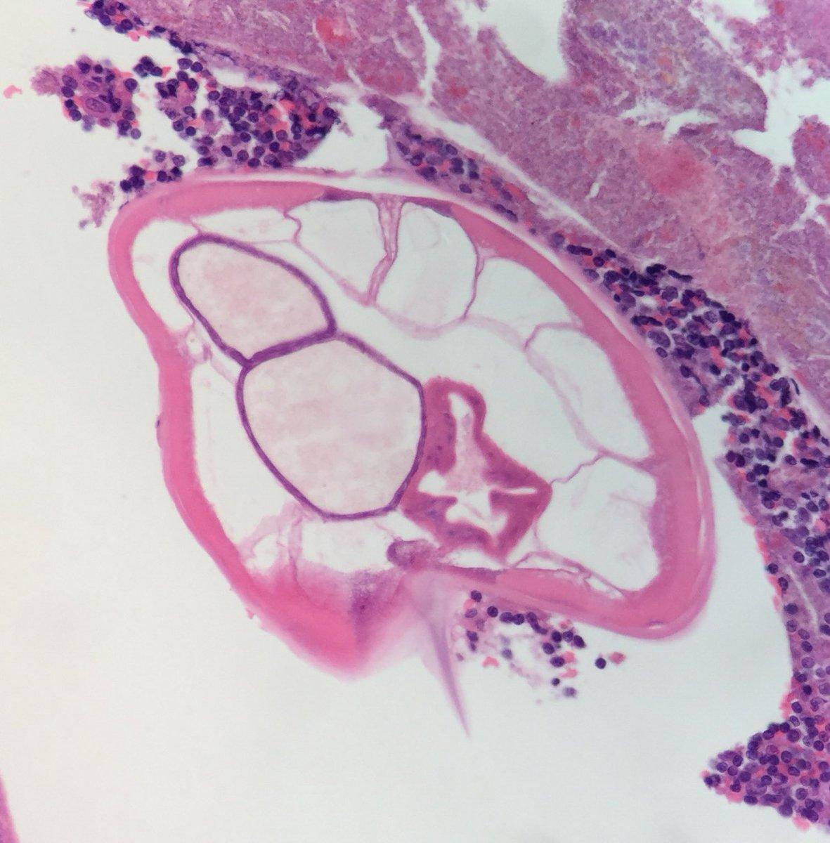enterobius vermicularis histology papillomatosis websters