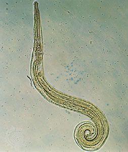 enterobius vermicularis history