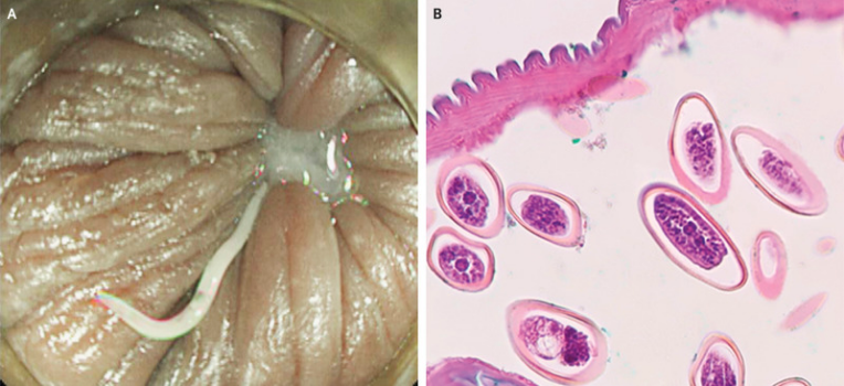 eyelid papilloma cryotherapy recurrent respiratory papillomatosis systematic review