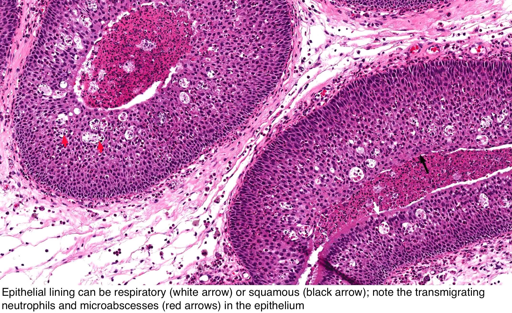 eyelid papilloma pathology outlines
