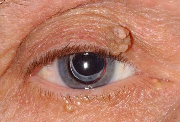 eyelid papilloma squamous
