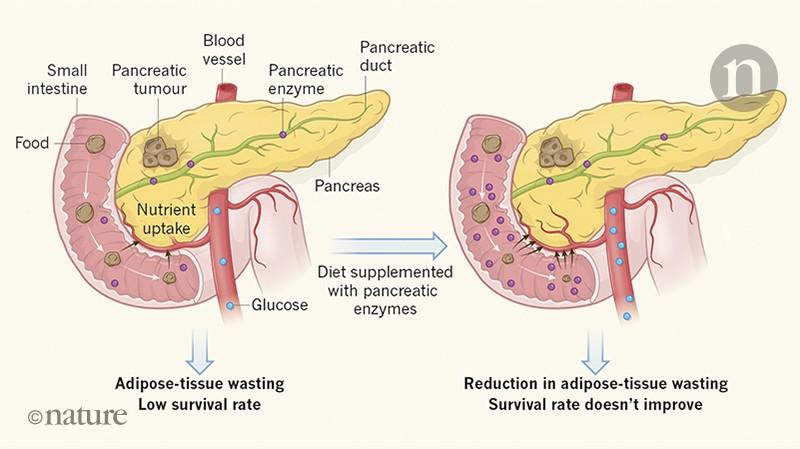 pancreatic cancer weight gain