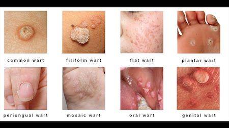 hpv infection genital warts laryngeal papillomatosis pathology