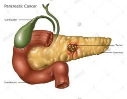 Cancerul Pancreatic | Centru Oncologie Severin