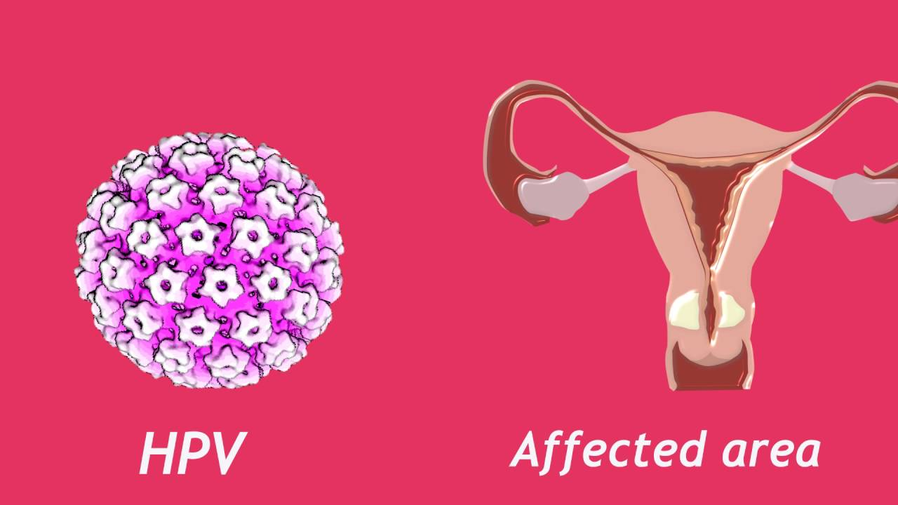 papilomavirus uman copii how is hpv cancer caused