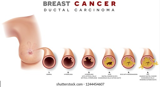 breastfeeding with ductal papilloma