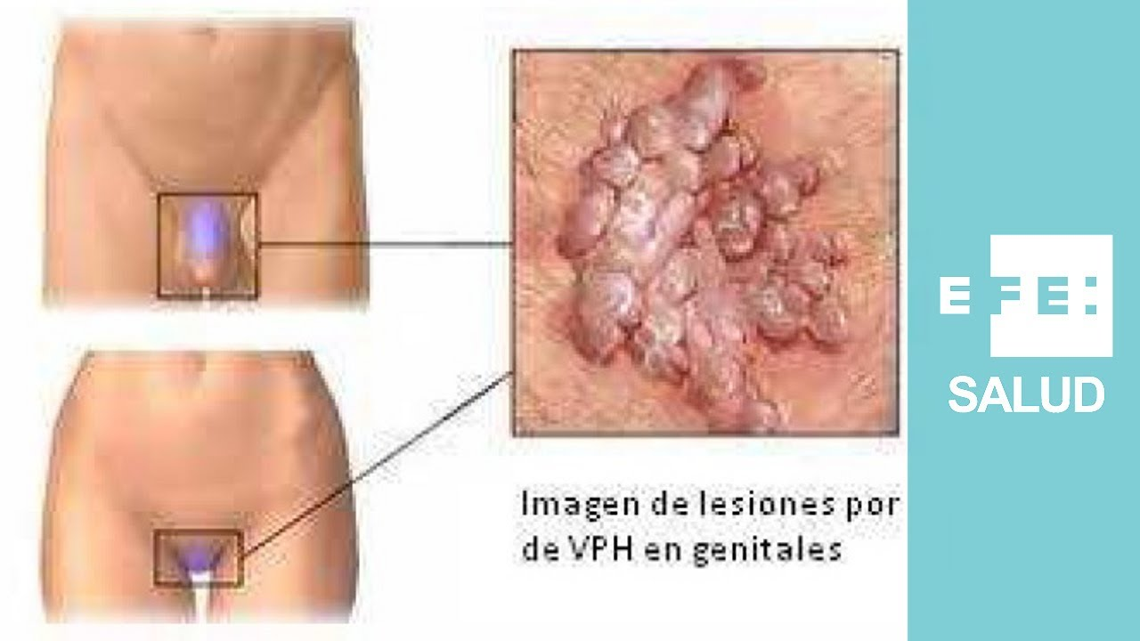 hpv in skin warts