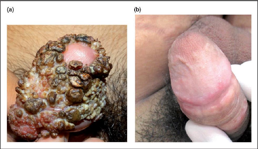 condyloma acuminata electrocautery