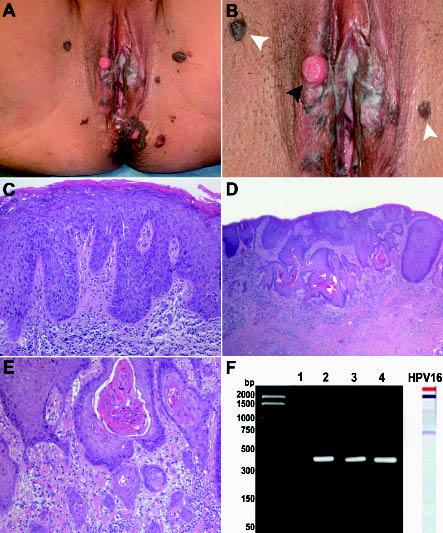 hpv bowen disease