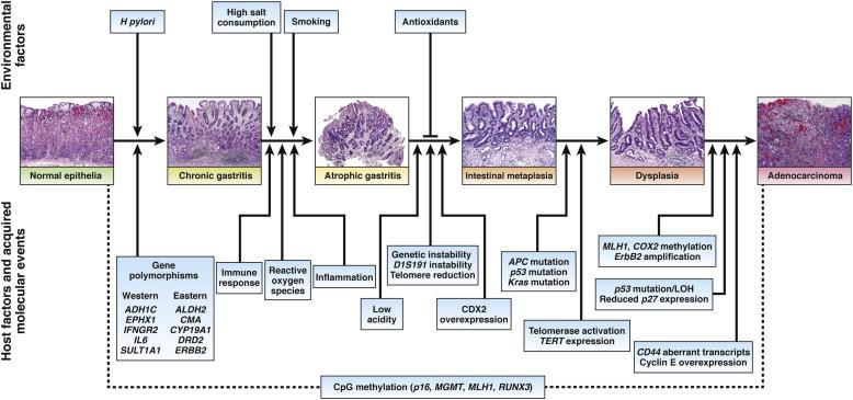 colorectal cancer case study cancer de prostata metastase ossea