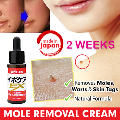 7 Easy Ways to Remove Skin Tags Without Seeing a Doctor | Skin tag removal, Skin tag, Health