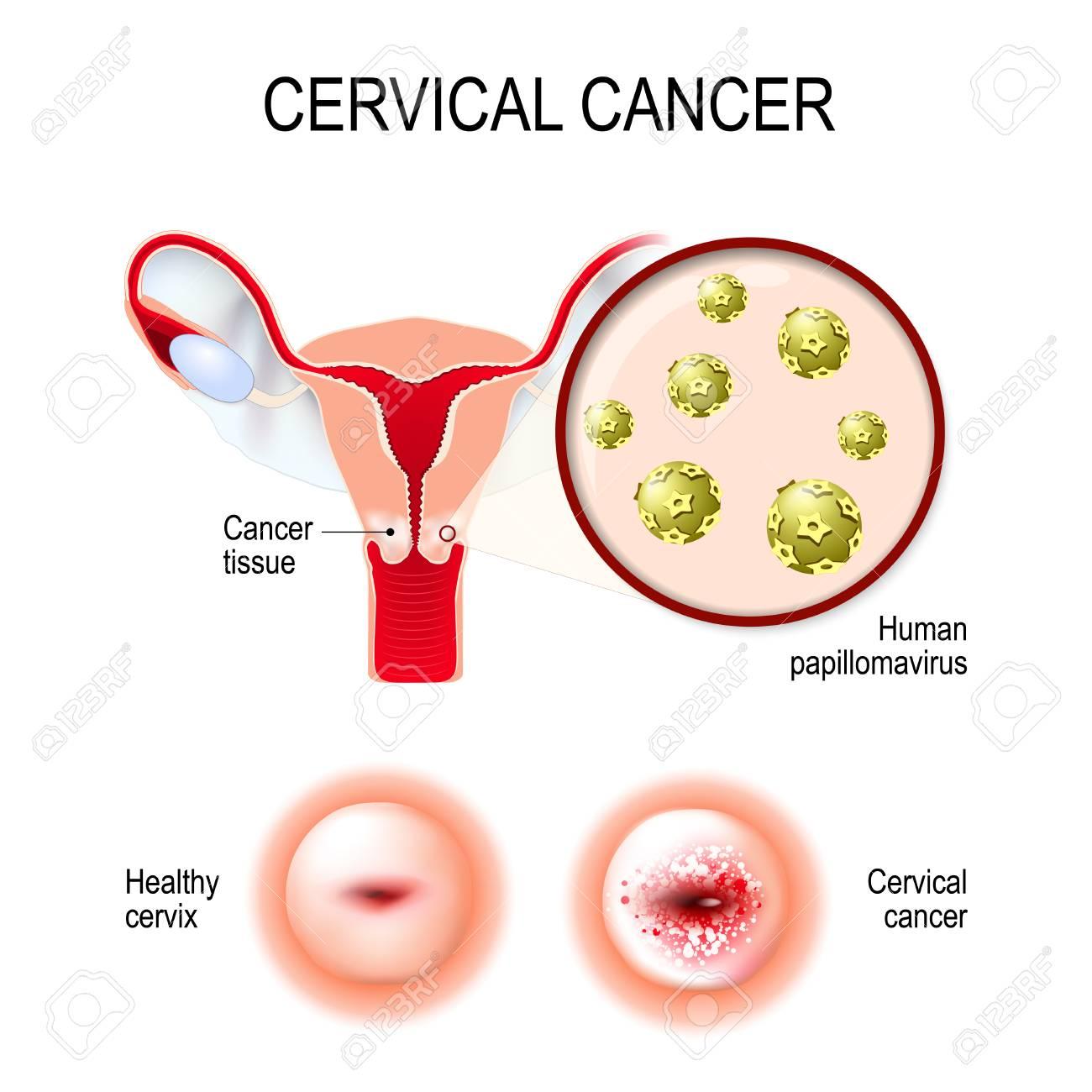hpv tumore cervice uterina anemia x falta de hierro