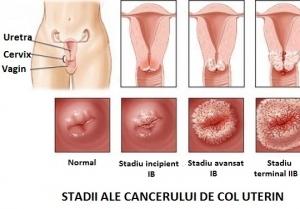 cancerul de col uterin tratament
