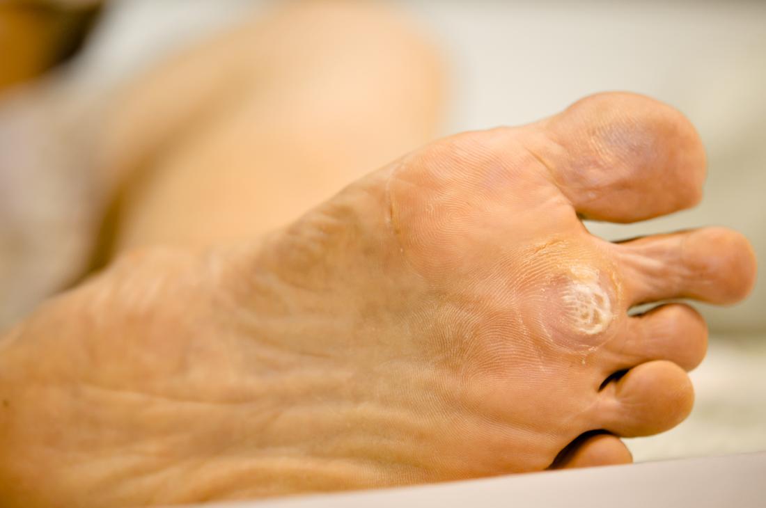 wart on foot black spot