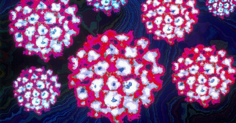 cancer ovaire familial detoxifiere fulga pareri