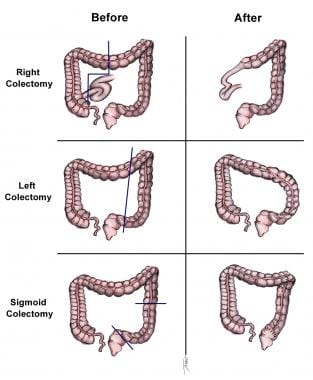 Cancer de colon urgenta