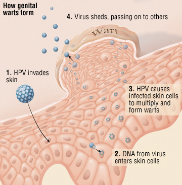 human papillomavirus in feet