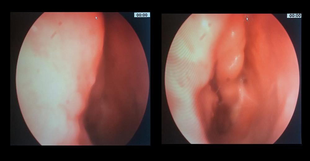 trattamento del papilloma virus intraductal papilloma no lump