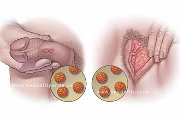 virus del papiloma humano como se contagia